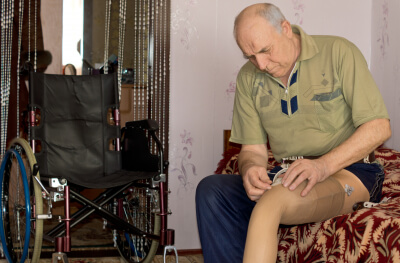 senior man fitting his prosthetic leg to his stump following an amputation